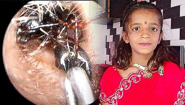 Shreya-Darji-ants