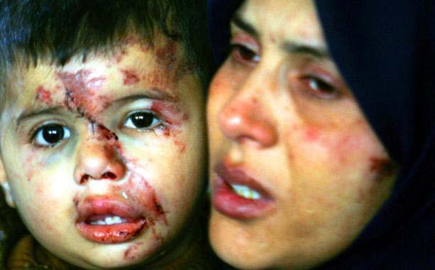 israel_gaza_war-crime6
