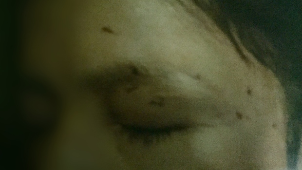 This photograph shows some of the injuries Angela Cardinal suffered when she was attacked by Lance Blanchard. The 28-year-old spent five nights in jail in June 2015 while testifying in a preliminary hearing.