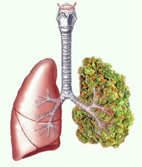 https://www.google.cl/imgres?imgurl=http%3A%2F%2Fdata.whicdn.com%2Fimages%2F90477732%2Flarge.jpg&imgrefurl=http%3A%2F%2Fherb.co%2F2015%2F09%2F07%2Fhow-to-smoke-weed-and-keep-your-lungs-healthy%2F&docid=IA7hjMot2yDRjM&tbnid=4Rxsi3LwO4_F6M%3A&vet=10ahUKEwjUhoStv4HVAhWBE5AKHZYKB5UQMwiaASgYMBg..i&w=500&h=500&bih=568&biw=1170&q=lungs%20cannabis&ved=0ahUKEwjUhoStv4HVAhWBE5AKHZYKB5UQMwiaASgYMBg&iact=mrc&uact=8
