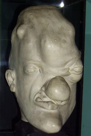 Tertiary syphilis head